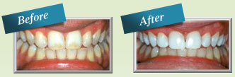 Before and after photos of teeth whitening - Hart Family Dental.